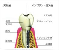 implant02Img.jpg