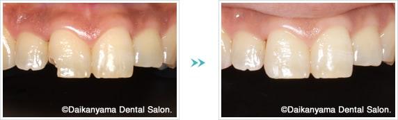 前歯のCR