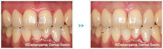 前歯のコンポジットレジン