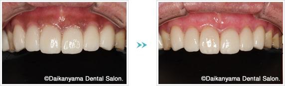 歯ぐき黒ずみ除去の症例