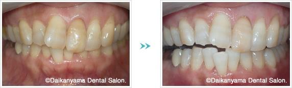 前歯のホワイトニング症例