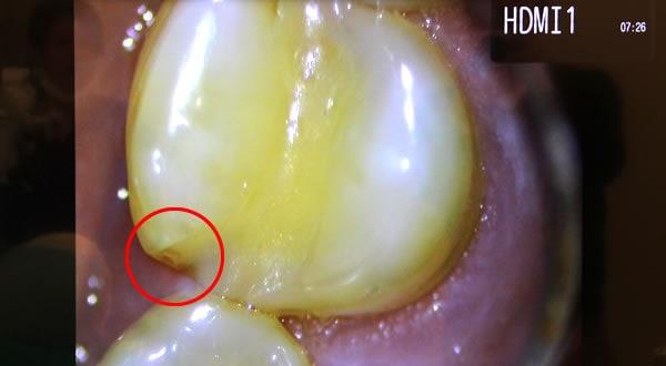 小さな虫歯