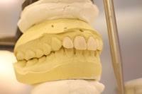 機能する歯
